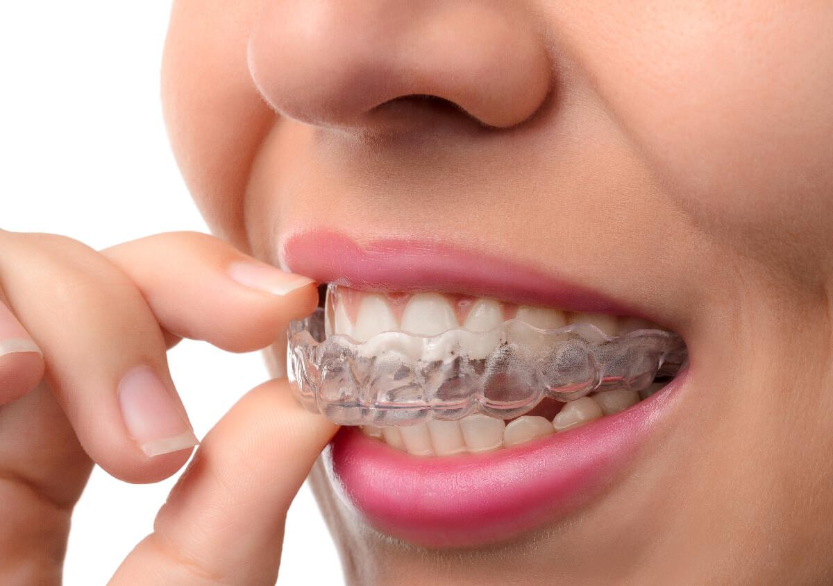 Invisalign Dentist in San Antonio TX Area