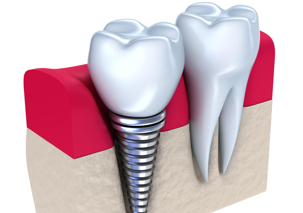 Customized replacement options for missing teeth